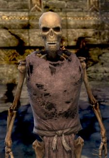 This guy didn't deal well with drama, and look!  Now he is a skeleton.  Don't be this guy.