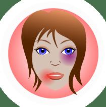 Erőszak esetén | LoveInfo