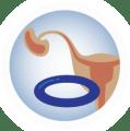 Hüvelygyűrű | LoveInfo - Langmár Bettina