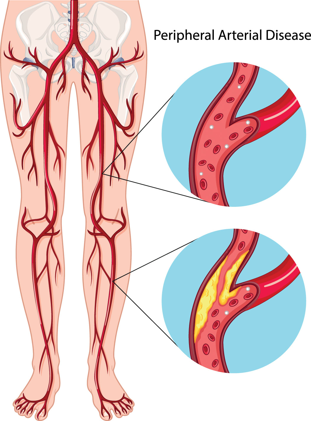 Peripheral Artery Disease diagram (PAD)