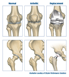 Joint Replacement Illustration