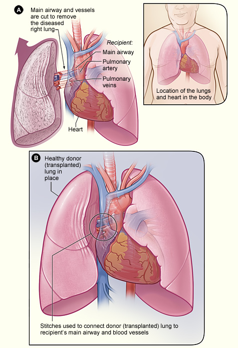 The illustration shows the process of a lung transplant. In figure A, the airway and blood vessels between a recipient's diseased right lung and heart are cut. The inset image shows the location of the lungs and heart in the body. In figure B, a healthy donor lung is stitched to the recipient's blood vessels and airway.