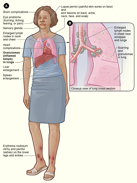 The illustration shows the major signs and symptoms of sarcoidosis (as