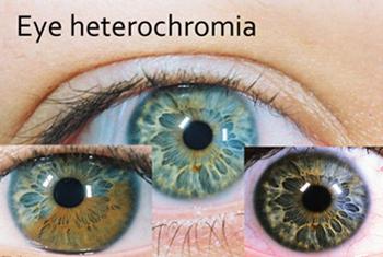 How do genes determine eye color?
