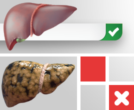 Non-alcoholic fatty liver disease, Genes and Diet