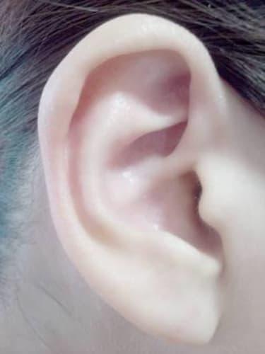 しこり 耳 の 近く
