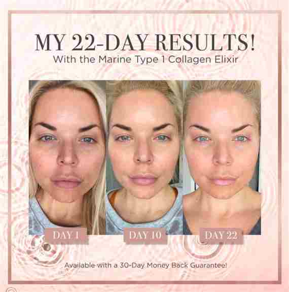 2 collagen elixir bottles per day