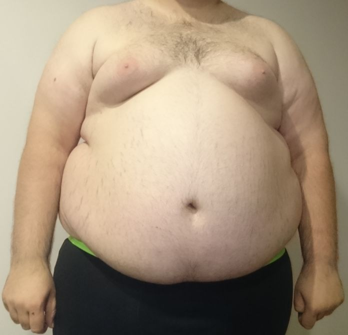 Obesity Causes 12 Types of Cancers