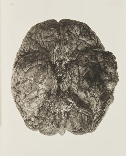 Necrosis of Portion of Brain Annan, James Craig  (Scottish, 1864-1946)