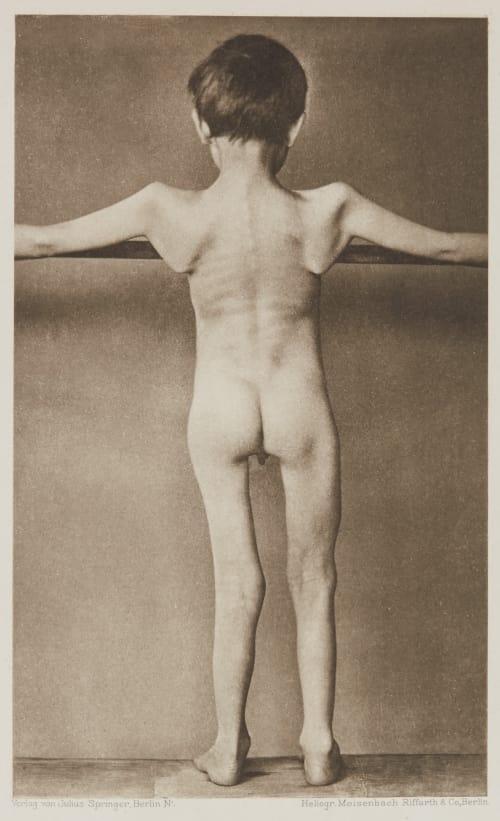 Tafel 7 Curschmann, Dr. H.   (German, 1846-1910)
