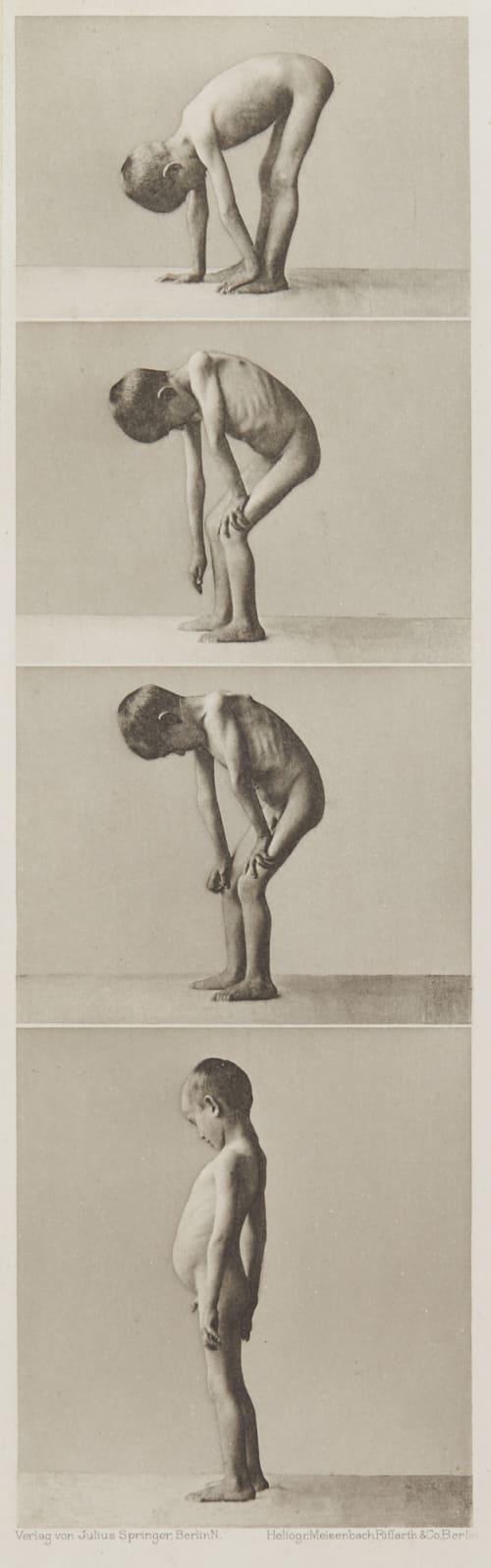 Tafel 8 Curschmann, Dr. H.   (German, 1846-1910)