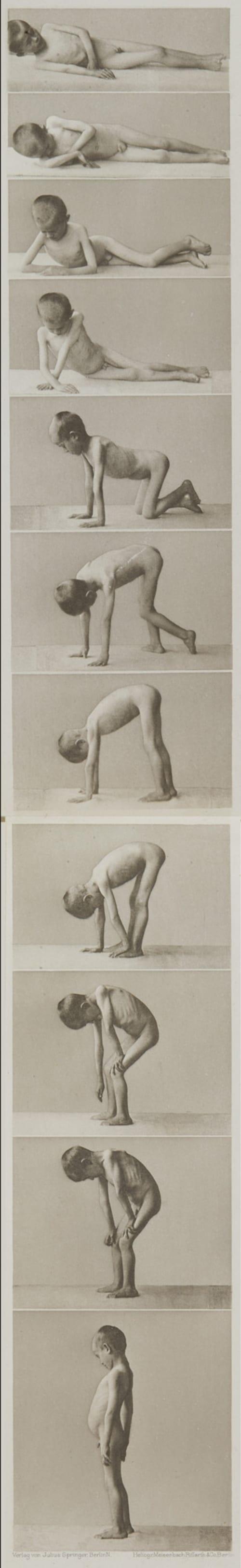 Tafel 8-9 Curschmann, Dr. H.   (German, 1846-1910)