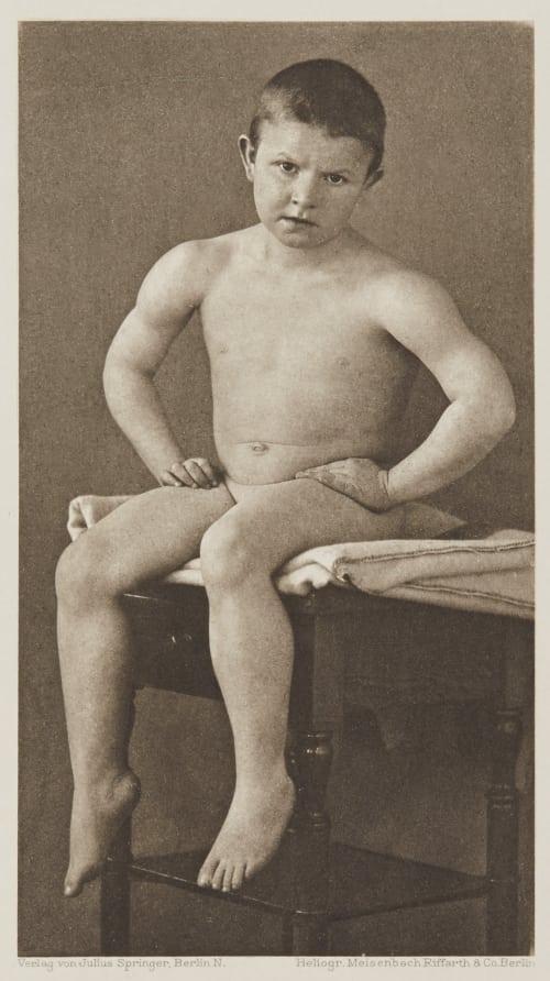 Tafel 10 Curschmann, Dr. H.   (German, 1846-1910)