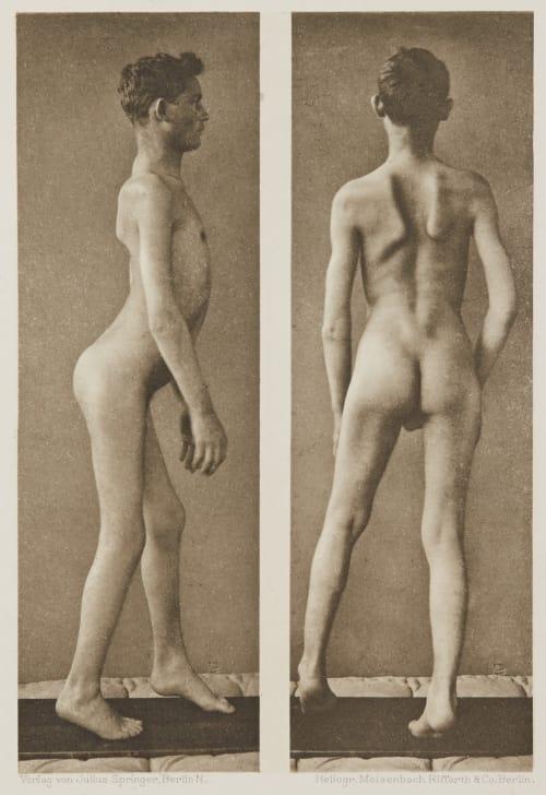 Tafel 11 Curschmann, Dr. H.   (German, 1846-1910)