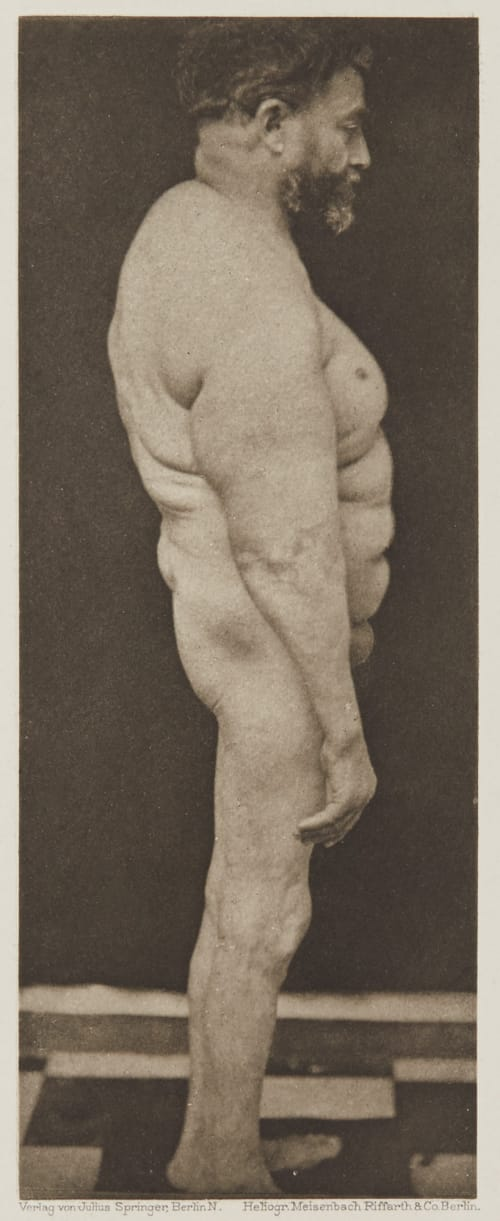 Tafel 13 Curschmann, Dr. H.   (German, 1846-1910)