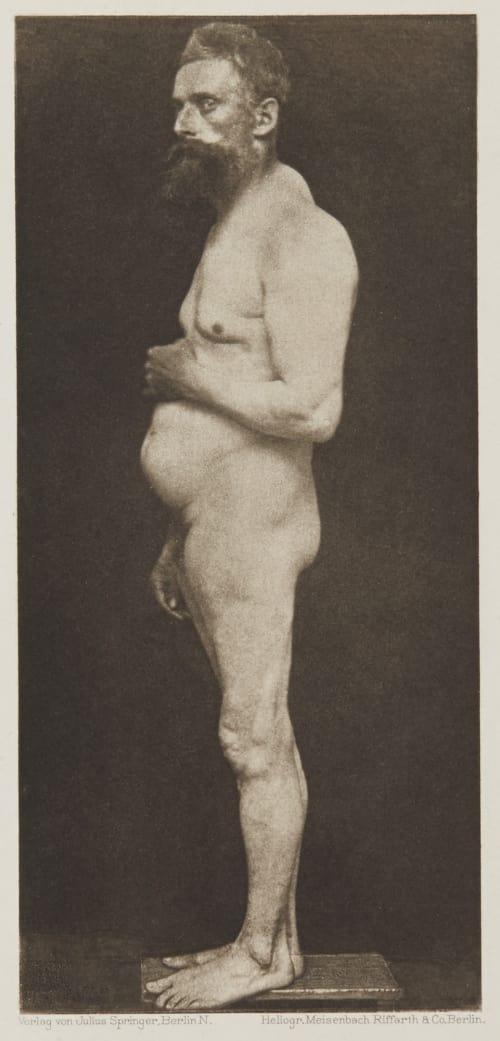 Tafel 14 Curschmann, Dr. H.   (German, 1846-1910)