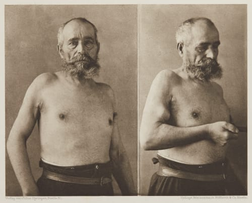 Tafel 33 Curschmann, Dr. H.   (German, 1846-1910)