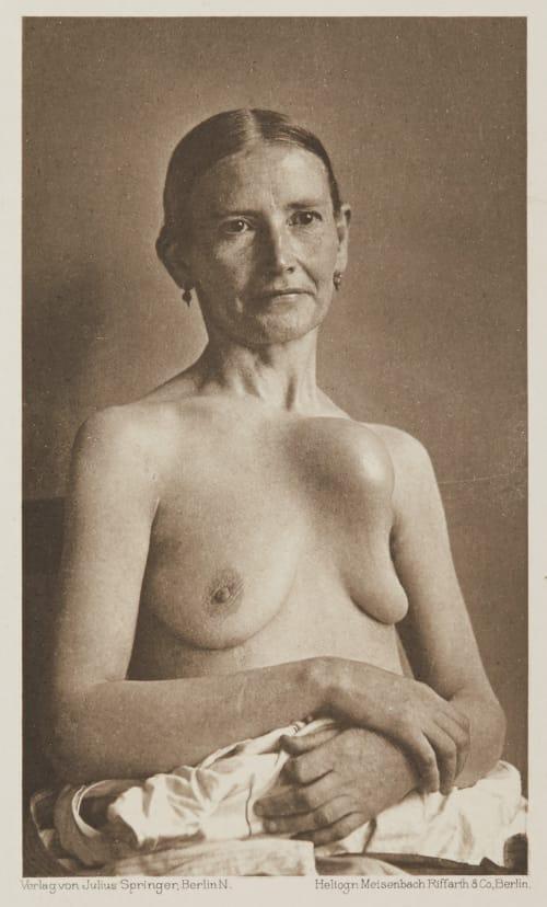 Tafel 45 Curschmann, Dr. H.   (German, 1846-1910)