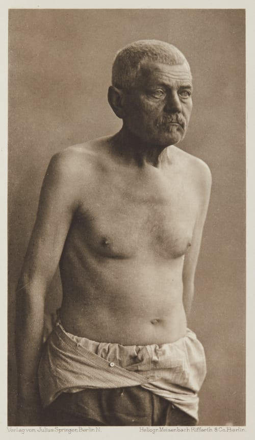 Tafel 46 Curschmann, Dr. H.   (German, 1846-1910)