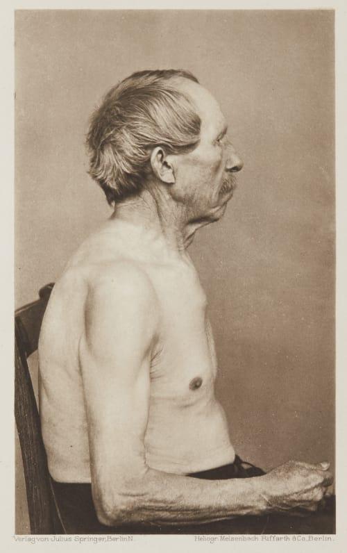 Tafel 47 Curschmann, Dr. H.   (German, 1846-1910)
