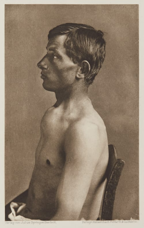 Tafel 48 Curschmann, Dr. H.   (German, 1846-1910)