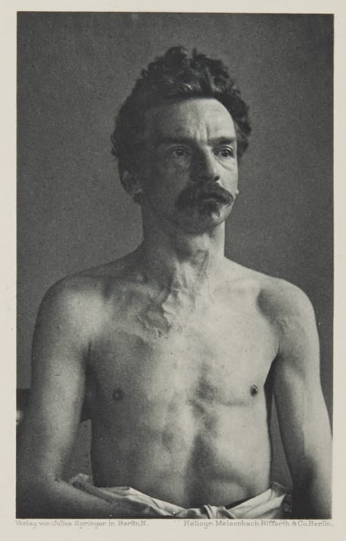 Tafel 52 Curschmann, Dr. H.   (German, 1846-1910)