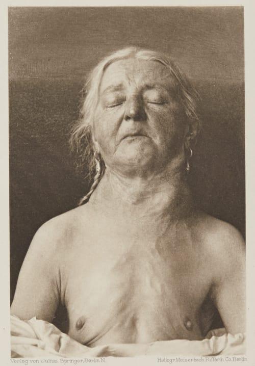 Tafel 54 Curschmann, Dr. H.   (German, 1846-1910)