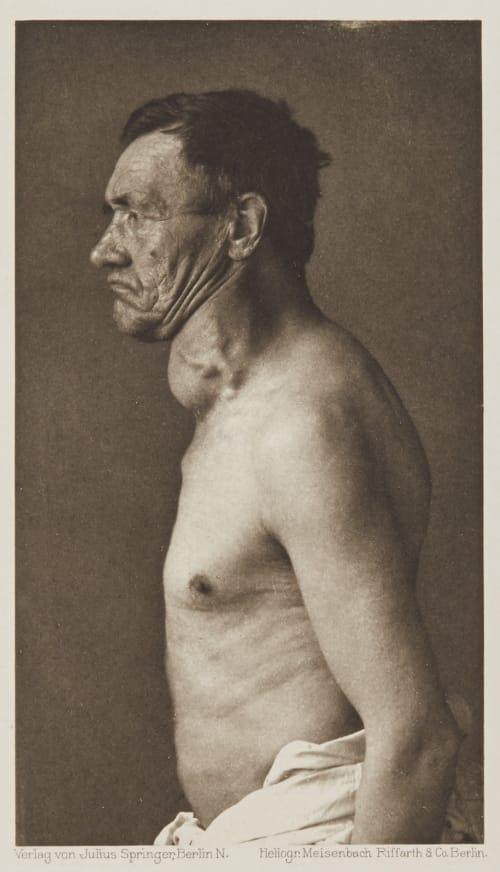 Tafel 55 Curschmann, Dr. H.   (German, 1846-1910)