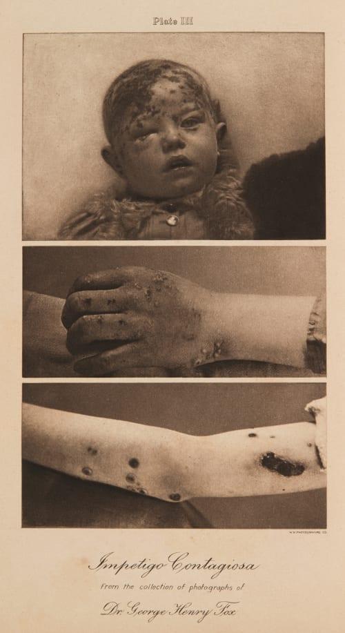 Plate III Impetigo Contagiosa Fox, George Henry  (American, 1846-1937)