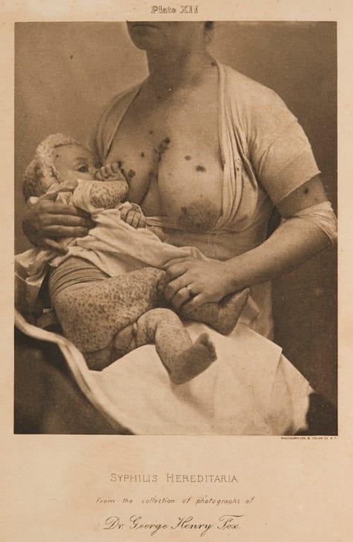 Plate XII Syphilis Haereditaria Fox, George Henry  (American, 1846-1937)