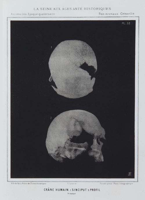 Crâne Humain. 1. Sinciput 2. Profil Bilordeaux, Adolphe,   (French, 1807-1872)