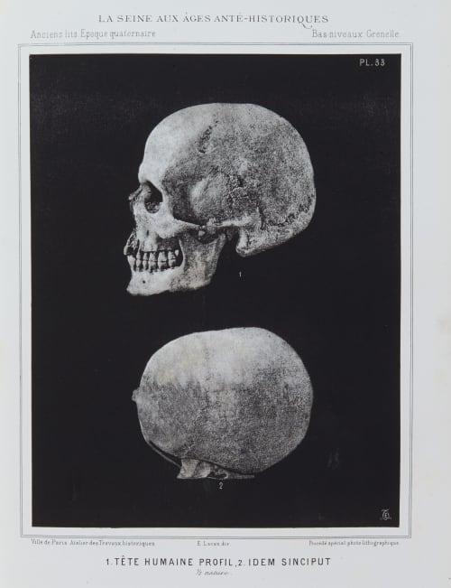 1. Tête humaine profil, 2. Idem Sinciput Bilordeaux, Adolphe,   (French, 1807-1872)