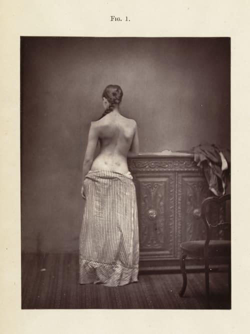 Fig. 1 Sayre, Lewis A.  (American, 1820-1900)