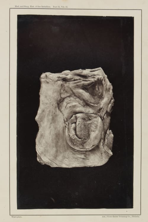 Plate X.  Hernia of the Jejunum through a shot perforation. Ward, E.J.  (American)