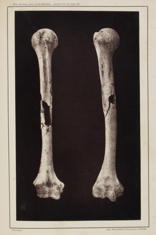 Plate XLVI. Shot Comminutions of the Humeris Ward, E.J.  (American)