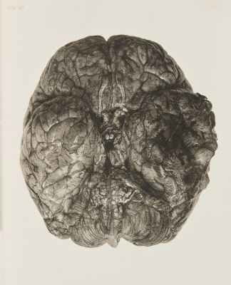 Necrosis of Portion of Brain
