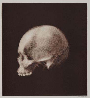 Arrangement for Taking Composite Photographs of Skulls, Photograph No. 1