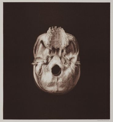 Arrangement for Taking Composite Photographs of Skulls, Photograph No. 1
