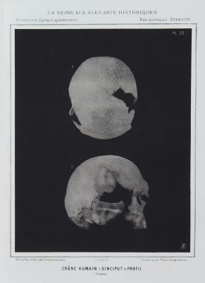 Crâne Humain. 1. Sinciput 2. Profil