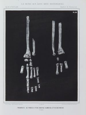 Fragments de radius et de cubitus humains, et os des mains