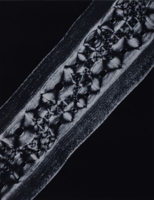 Planche VI Cartilages debaleine