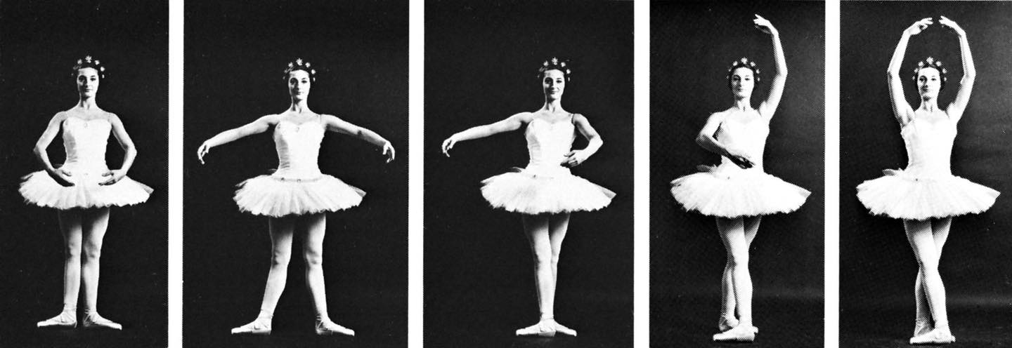 Question of the Day | Classical Ballet: Who Gets to Dance?