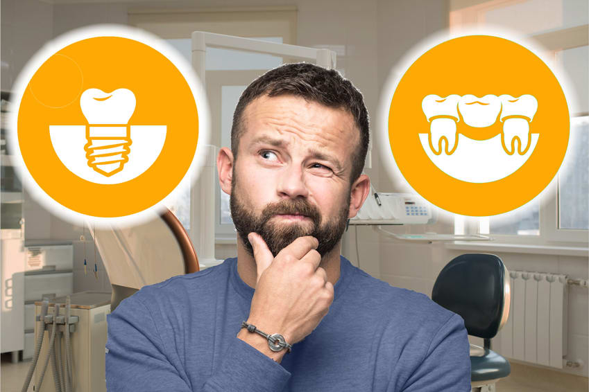 Which Is Better: Dental Implant or Fixed Bridge?