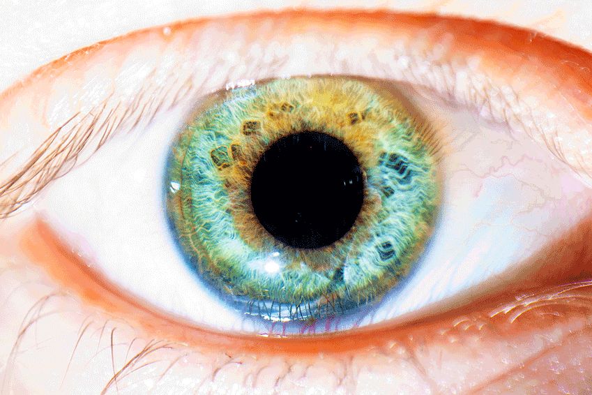 Eye Floaters: Be Concerned, But Don't Panic!