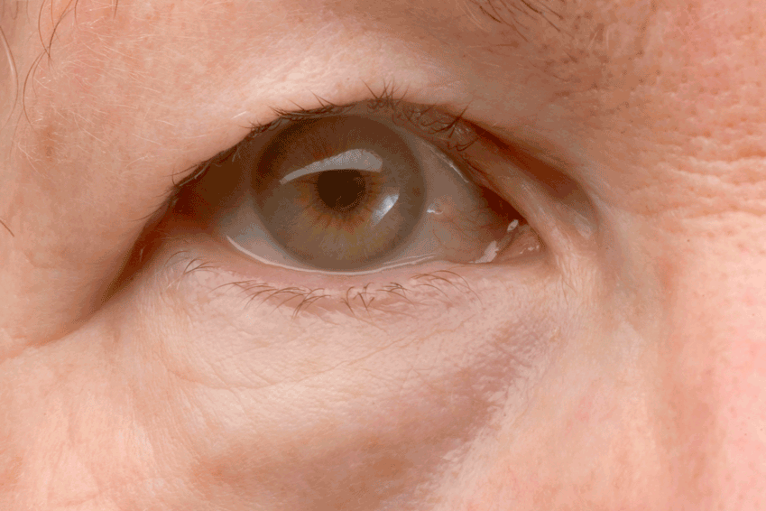 The Eye Lift Revisited