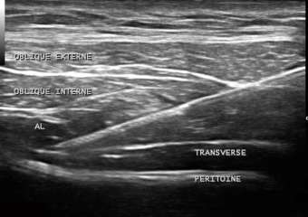 Ultrasound-guided trunk block... improving skill level, over 2 days