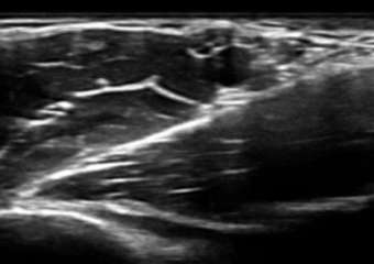 Ultrasound-guided peripheral RA - beginner level, for 2 days