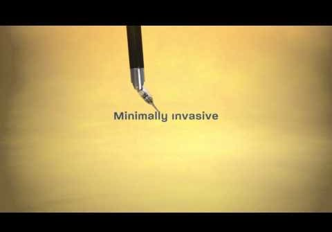 daVinci® Robot Assisted Surgery | Middlesex Hospital