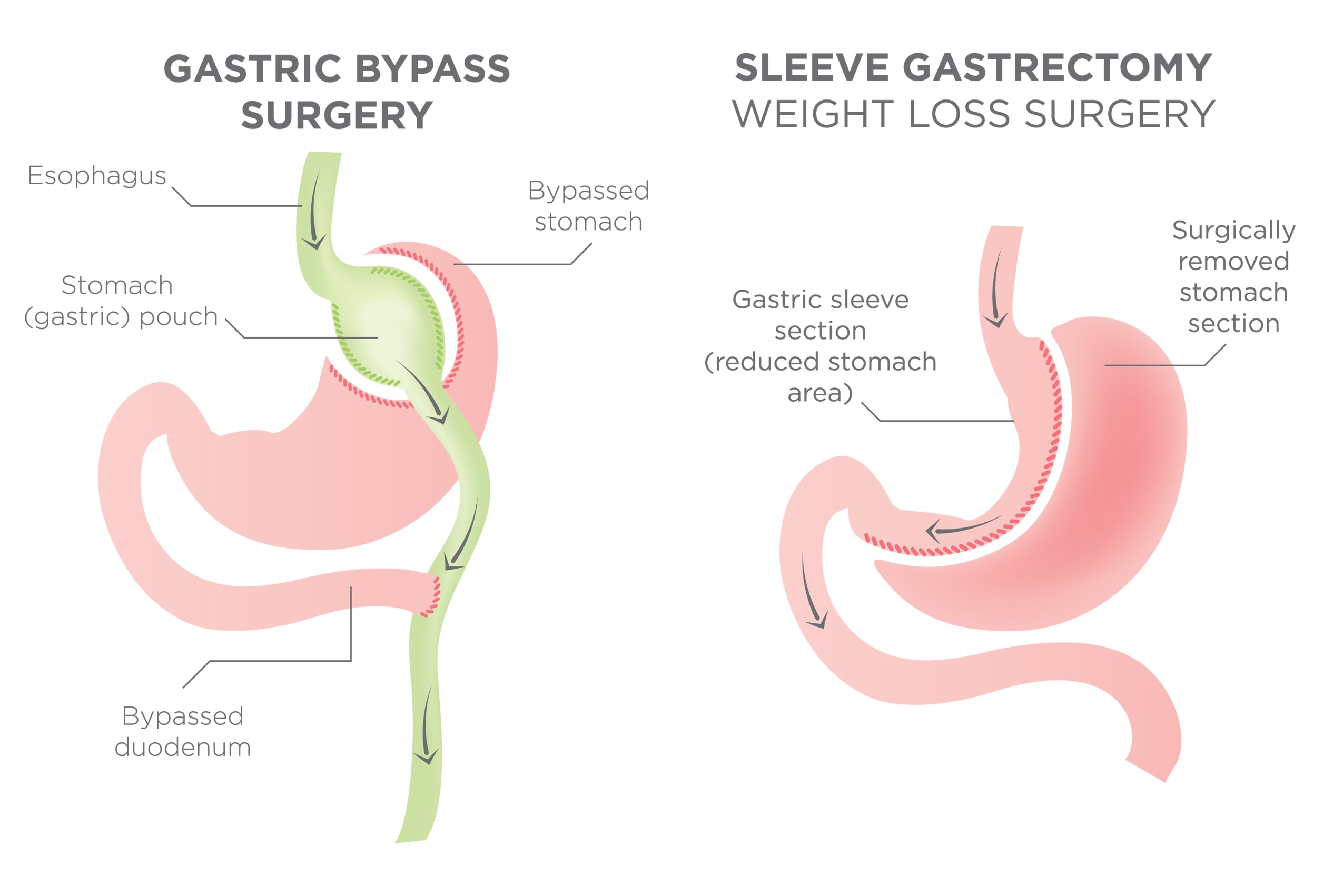 Illustration of bypass and sleeve surgery
