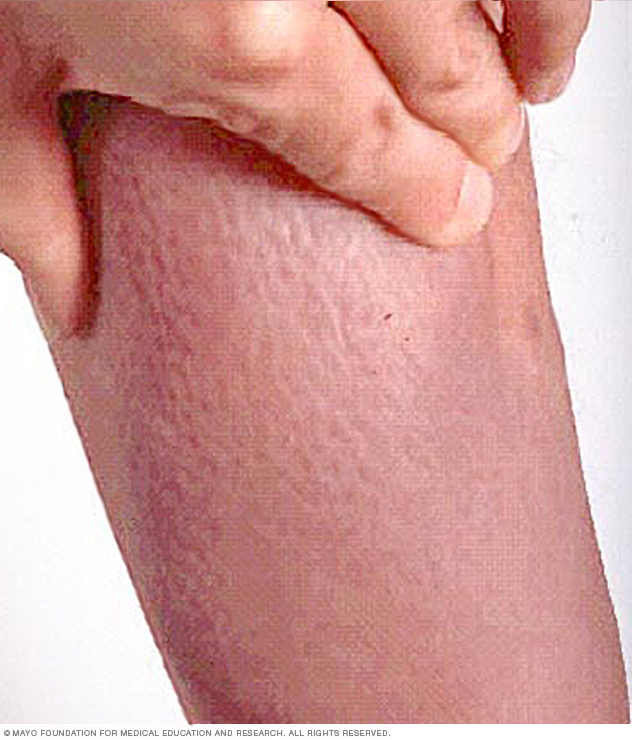 Graves' dermopathy